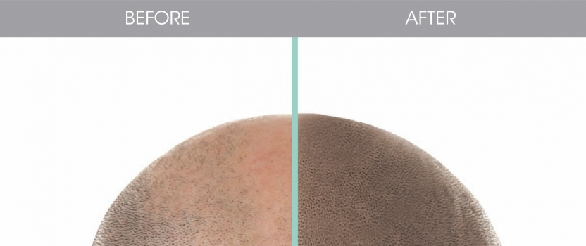 SCALP MICROPIGMENTATION COURSE